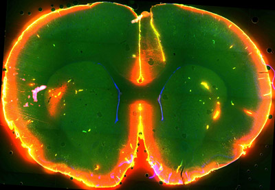 Scientists watched dye flow through the brain of a sleeping mouse.  Courtesy of Nedergaard Lab, University of Rochester Medical Center.